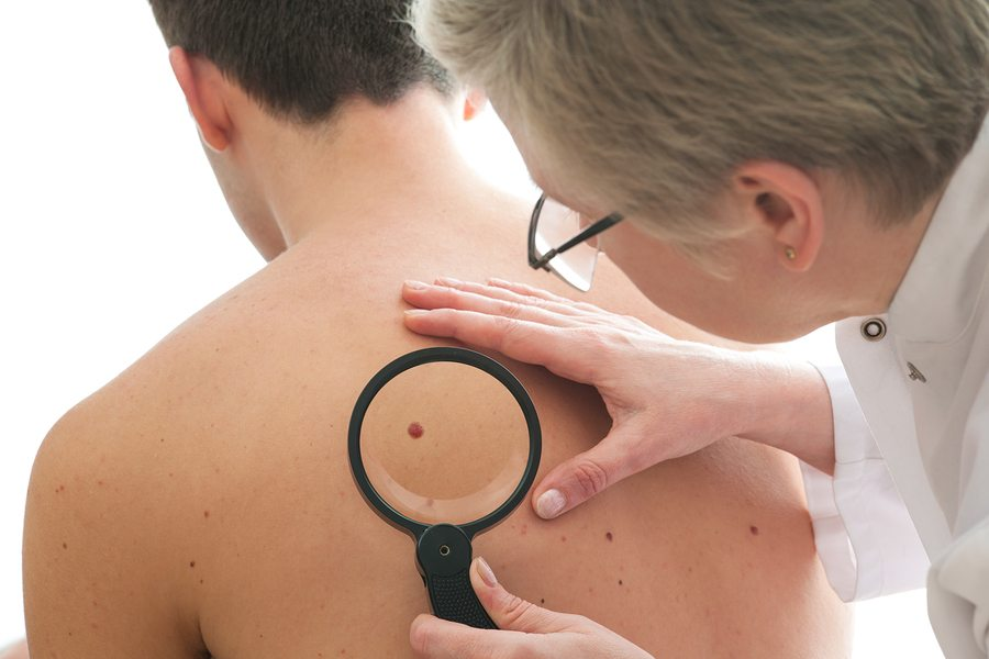 Cancer Mole - The Truth About Topical Marijuana Cream Effectiveness